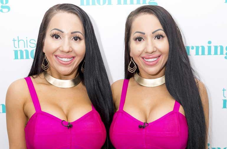 Anna ja Lucy ovat identtiset kaksoset.