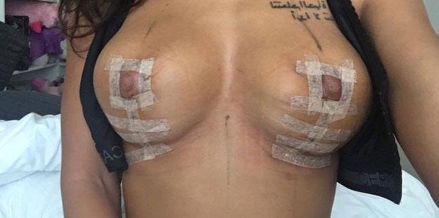 cheyennen rinnat leikkauksen jälkeen