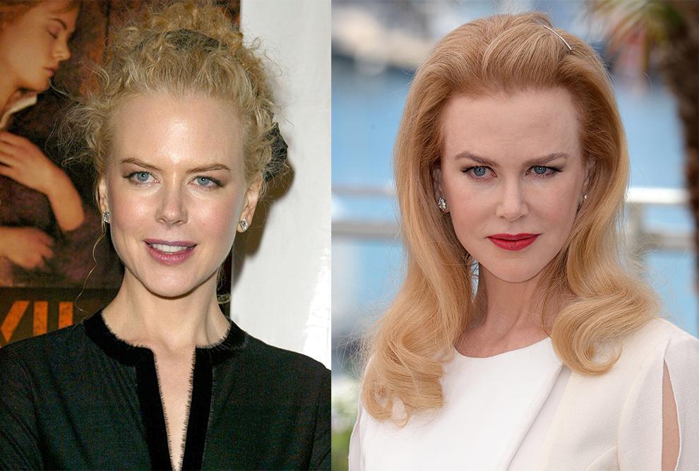 Hollywoodin botox kuningattaret  katso ennen ja jälkeen