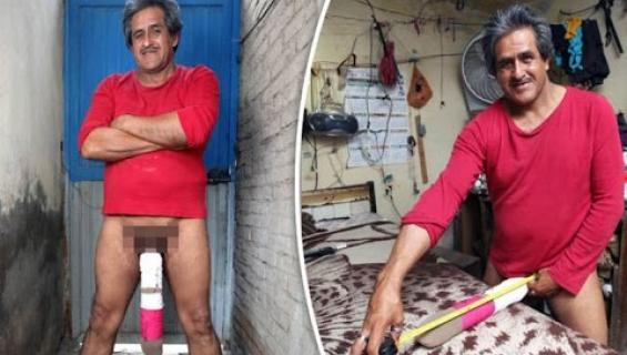 """Roberto, 55, ei voi tehdä töitä, koska hänen peniksensä on liian iso! """"En pysty polvistumaan sen takia"""" - video!"""
