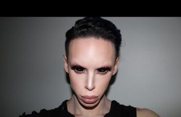 Vinny, 23, haluaa poistaa sukupuolielimensä: takana yli 100 kauneusleikkausta - haluaa näyttää avaruusolennolta!